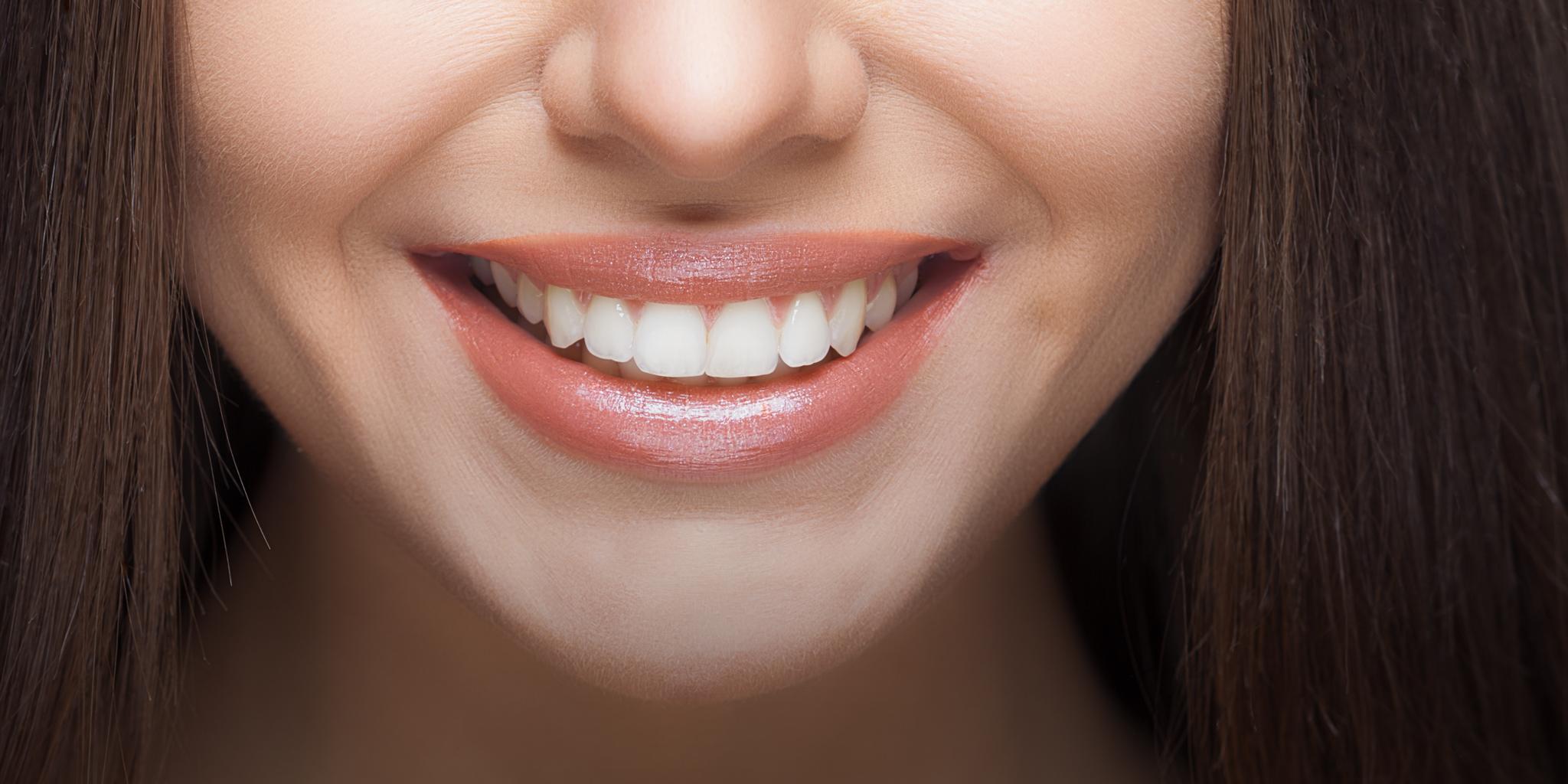 Weiße Zähne durch Bleaching – sanfte Zahnaufhellung