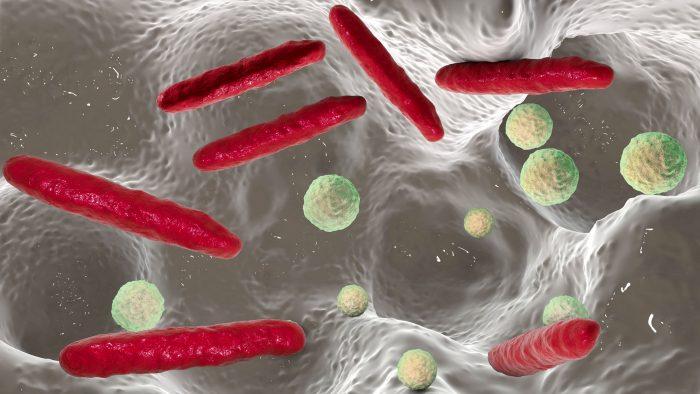 Kariesbakterien im Mundraum – 3D-Darstellung